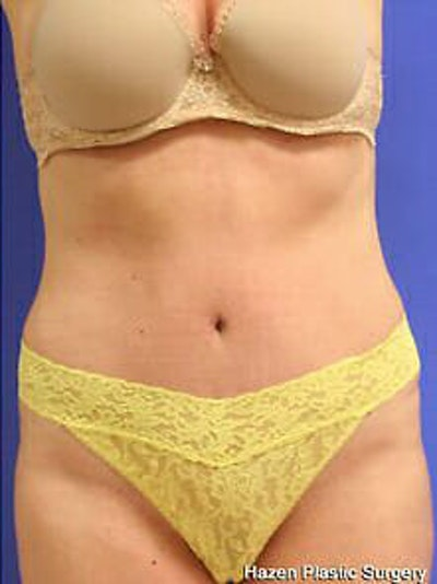 Tummy Tuck Gallery - Patient 9605603 - Image 2