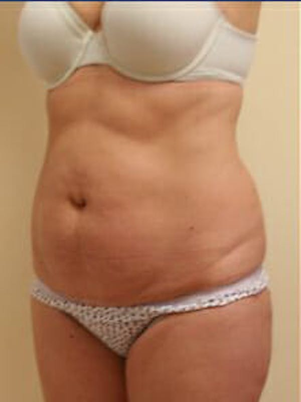 Tummy Tuck Gallery - Patient 9605603 - Image 3