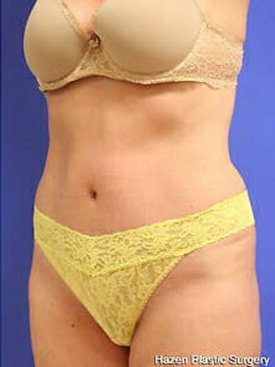Tummy Tuck Gallery - Patient 9605603 - Image 4