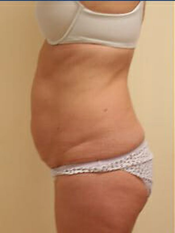 Tummy Tuck Gallery - Patient 9605603 - Image 5