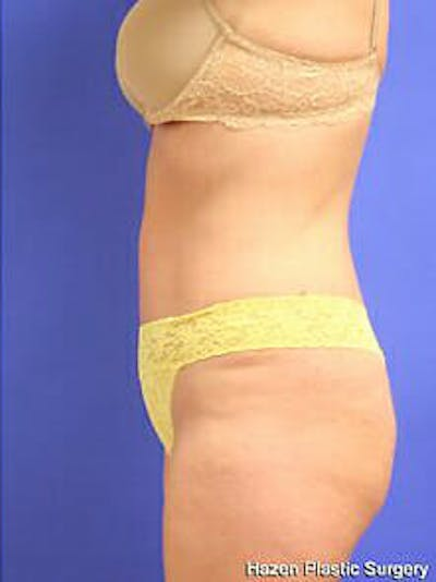 Tummy Tuck Gallery - Patient 9605603 - Image 6
