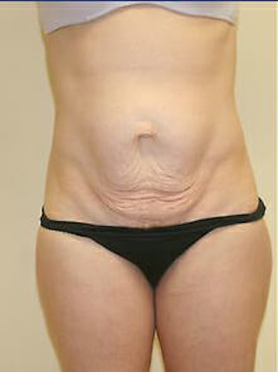 Tummy Tuck Gallery - Patient 9605606 - Image 1