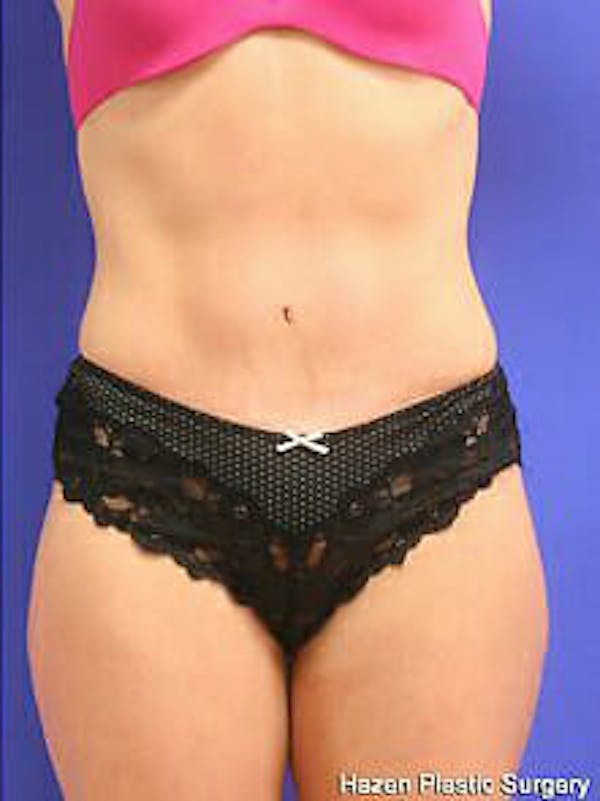 Tummy Tuck Gallery - Patient 9605606 - Image 2