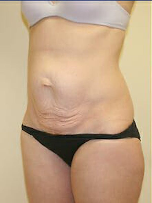 Tummy Tuck Gallery - Patient 9605606 - Image 3