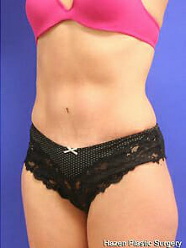 Tummy Tuck Gallery - Patient 9605606 - Image 4