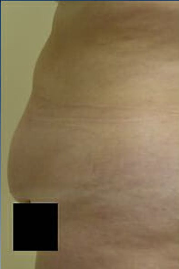 Tummy Tuck Gallery - Patient 9605609 - Image 5