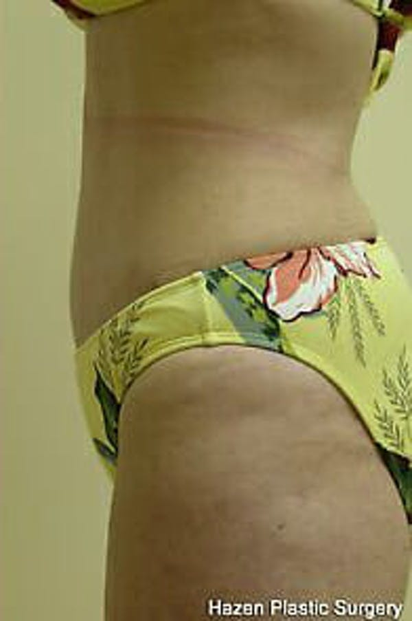 Tummy Tuck Gallery - Patient 9605609 - Image 6