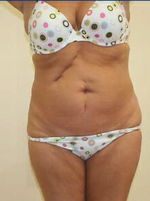 Tummy Tuck Gallery - Patient 9605612 - Image 1