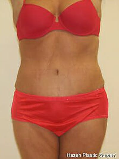 Tummy Tuck Gallery - Patient 9605612 - Image 2