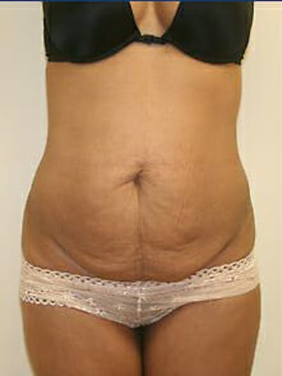 Tummy Tuck Gallery - Patient 9605614 - Image 1