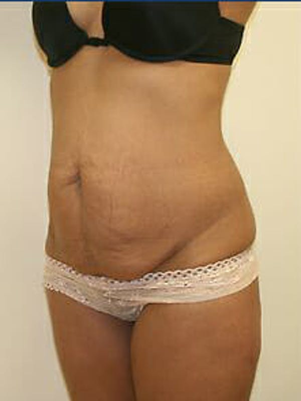 Tummy Tuck Gallery - Patient 9605614 - Image 3