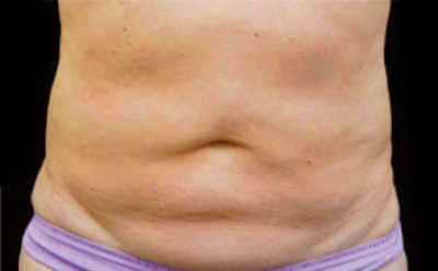 CoolSculpting® Gallery - Patient 9605622 - Image 1