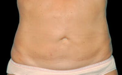CoolSculpting® Gallery - Patient 9605622 - Image 2