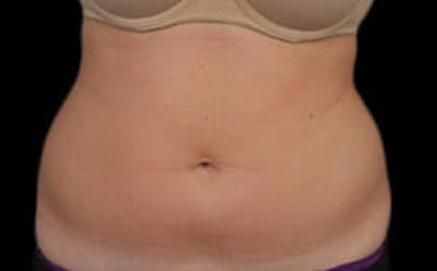 CoolSculpting® Gallery - Patient 9605624 - Image 1