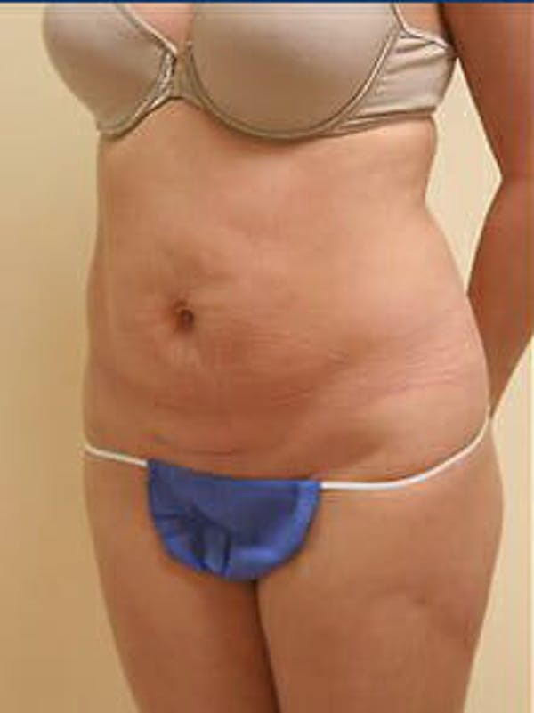 Tummy Tuck Gallery - Patient 9605625 - Image 3
