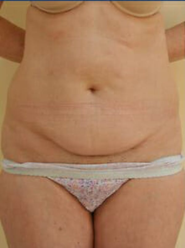 Tummy Tuck Gallery - Patient 9605630 - Image 1