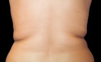 CoolSculpting® Gallery - Patient 9605627 - Image 1