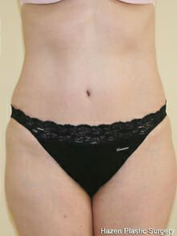 Tummy Tuck Gallery - Patient 9605630 - Image 2