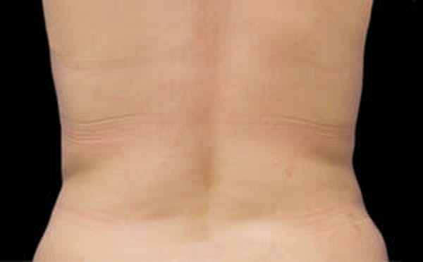CoolSculpting® Gallery - Patient 9605627 - Image 2