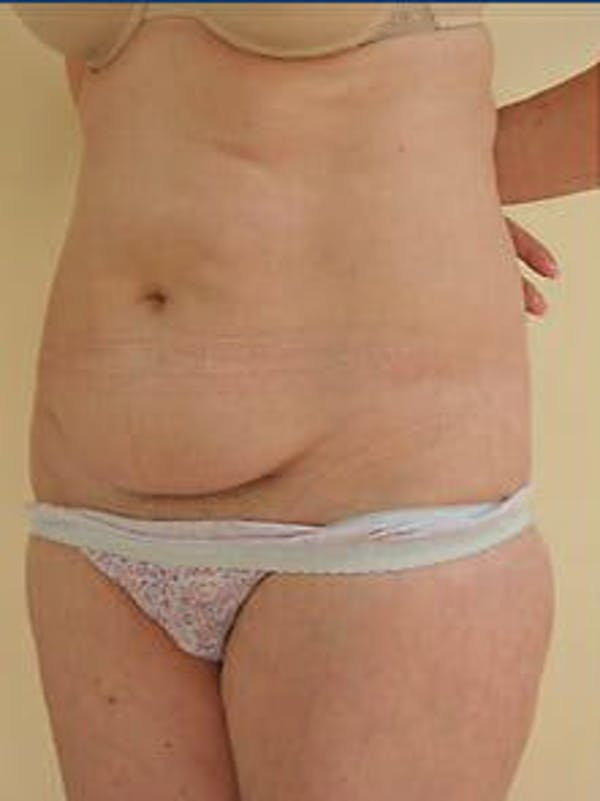Tummy Tuck Gallery - Patient 9605630 - Image 3