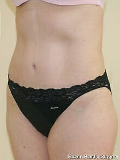 Tummy Tuck Gallery - Patient 9605630 - Image 4