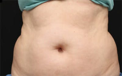 CoolSculpting® Gallery - Patient 9605629 - Image 1