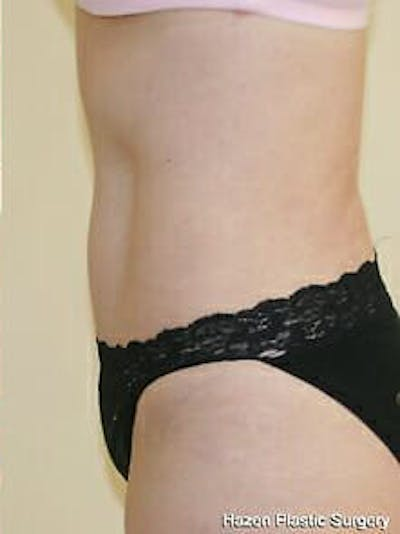 Tummy Tuck Gallery - Patient 9605630 - Image 6