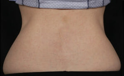 CoolSculpting® Gallery - Patient 9605633 - Image 2