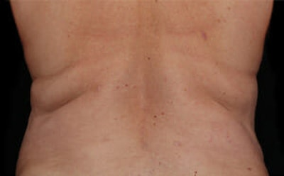 CoolSculpting® Gallery - Patient 9605634 - Image 1