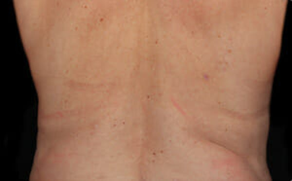 CoolSculpting® Gallery - Patient 9605634 - Image 2