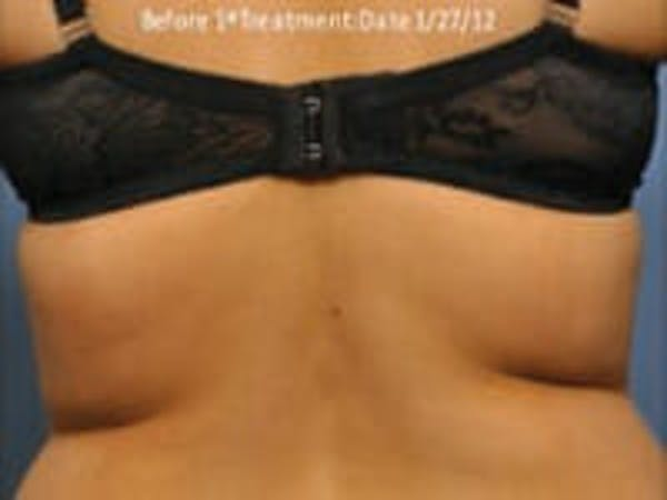Exilis Ultra Gallery - Patient 9605637 - Image 1