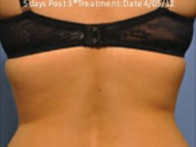 Exilis Ultra Gallery - Patient 9605637 - Image 2