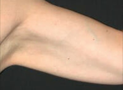 Exilis Ultra Gallery - Patient 9605638 - Image 2