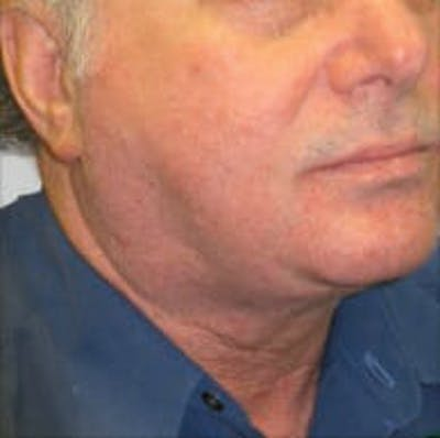 Exilis Ultra Gallery - Patient 9605640 - Image 2