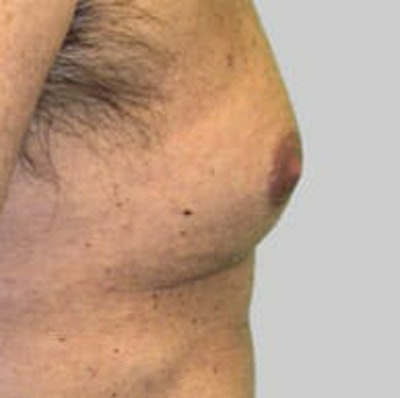 Exilis Ultra Gallery - Patient 9605650 - Image 1