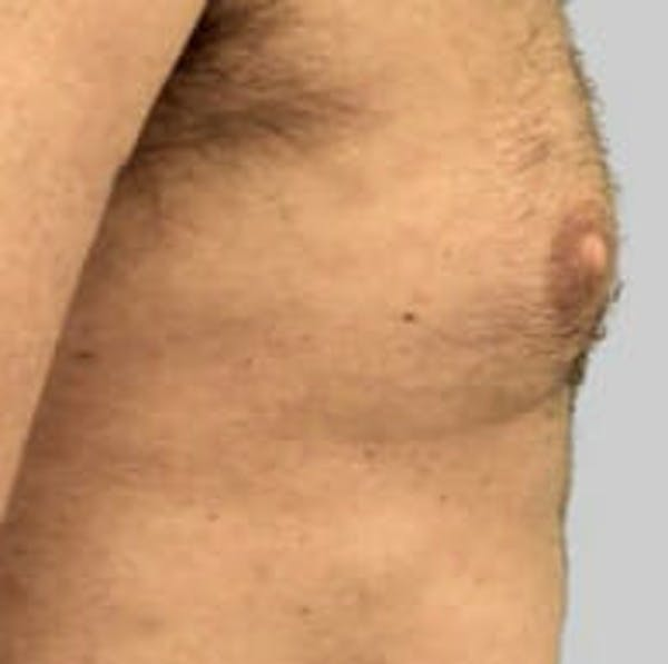 Exilis Ultra Gallery - Patient 9605650 - Image 2