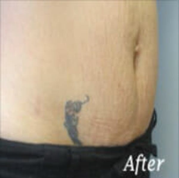 Exilis Ultra Gallery - Patient 9605653 - Image 2