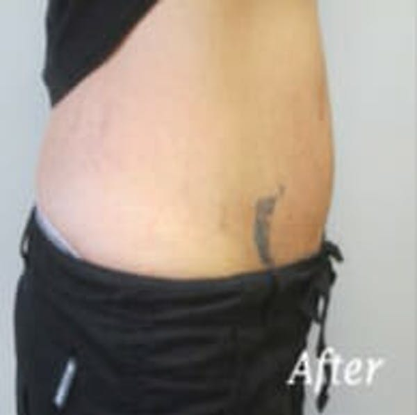 Exilis Ultra Gallery - Patient 9605653 - Image 4