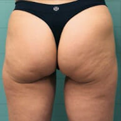Exilis Ultra Gallery - Patient 9605655 - Image 1