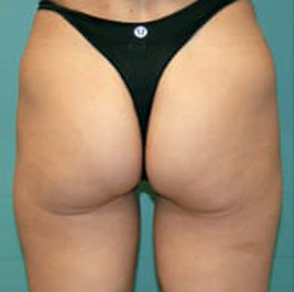 Exilis Ultra Gallery - Patient 9605655 - Image 2
