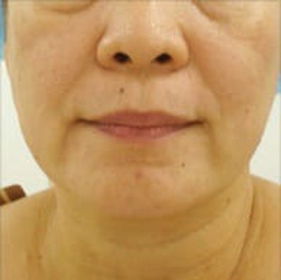 Exilis Ultra Gallery - Patient 9605657 - Image 1