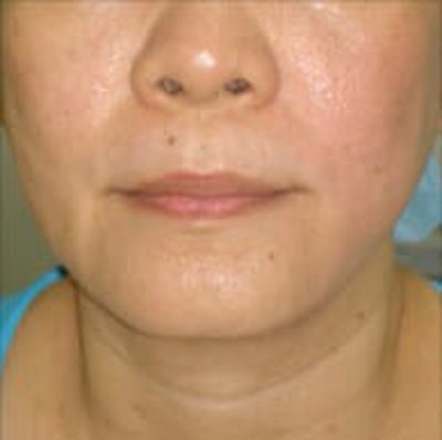 Exilis Ultra Gallery - Patient 9605657 - Image 2