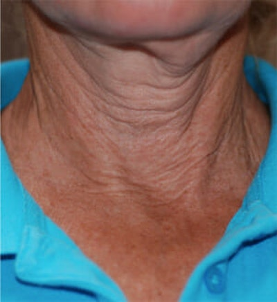 Exilis Ultra Gallery - Patient 9605659 - Image 1