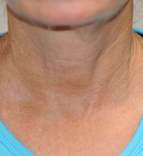 Exilis Ultra Gallery - Patient 9605659 - Image 2