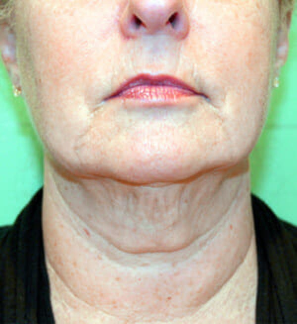 Exilis Ultra Gallery - Patient 9605662 - Image 1