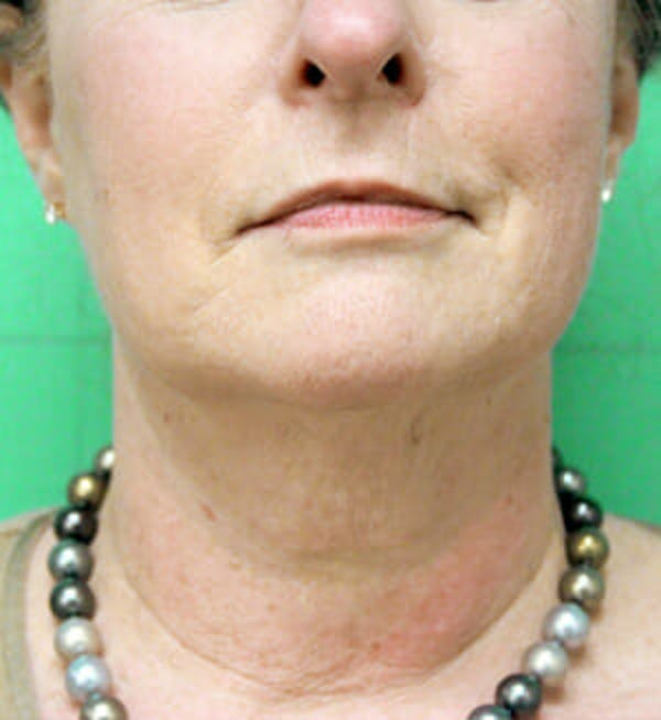 Exilis Ultra Gallery - Patient 9605662 - Image 2