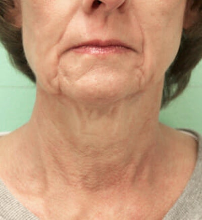 Exilis Ultra Gallery - Patient 9605665 - Image 1