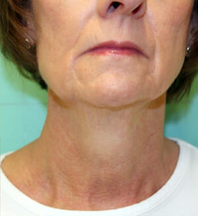 Exilis Ultra Gallery - Patient 9605665 - Image 2