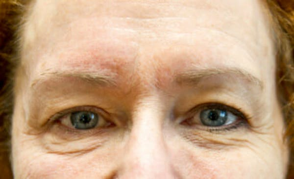 Exilis Ultra Gallery - Patient 9605671 - Image 1