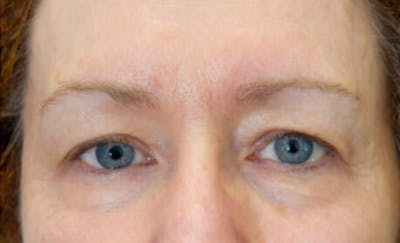 Exilis Ultra Gallery - Patient 9605671 - Image 2